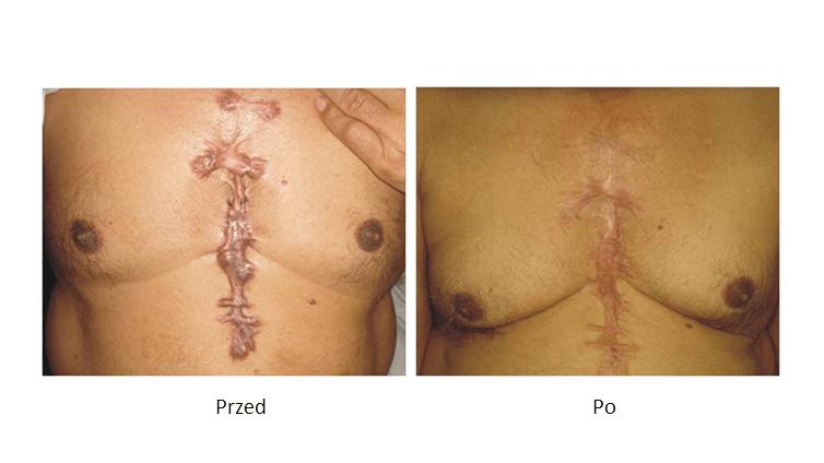 ollie-pl-infini-szkolenia-z-laseroterapii-efekty-poprawa-likwidacja-przerostu-blizn-przed-i-po-zabiegu.jpg