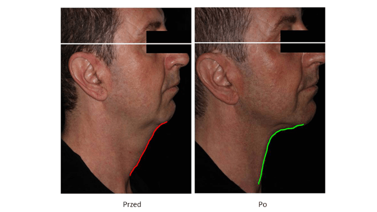 ollie-pl-infini-szkolenia-z-laseroterapii-efekty-poprawa-napiecia-skory-owalu-przed-i-po-zabiegu.jpg