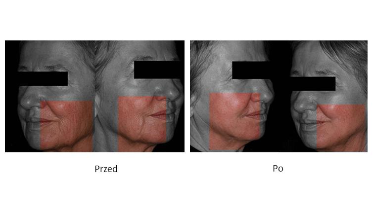 ollie-pl-infini-szkolenia-z-laseroterapii-efekty-poprawa-napiecia-skory-splycenie-zmarszczek-przed-i-po-zabiegu.jpg
