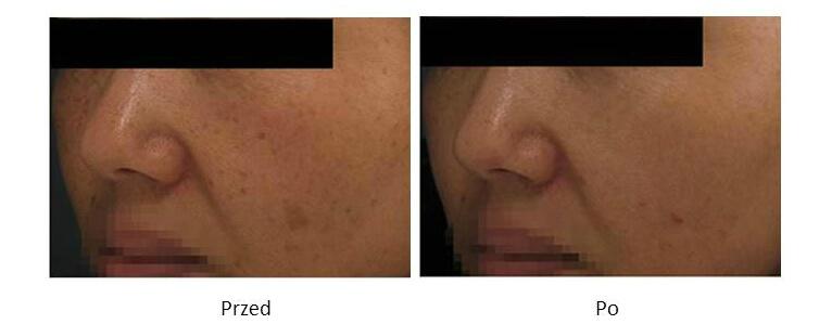 ollie-pl-efekty-zabiegow-laserem-ipl-leczenie-fotostarzenia-zdjecia-przed-po