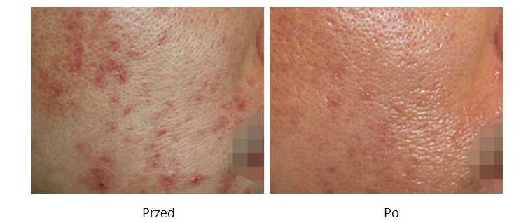 ollie-pl-efekty-zabiegow-laserem-ipl-leczenie-tradzika-pospolitego-zmiany-zapalne