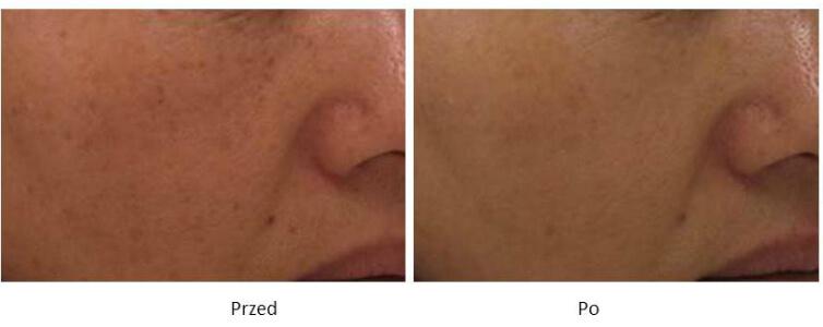 ollie-pl-efekty-zabiegow-laserem-ipl-leczenie-zmian-pigmentacyjnych-zdjecia