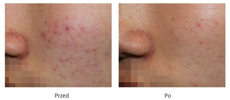 ollie-pl-efekty-zabiegow-laserem-ipl-leczenie-zmian-zapalnych-tradzik-pospolity
