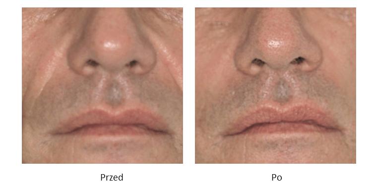 ollie-pl-efekty-zabiegow-medycyny-estetycznej-kwas-hialuronowy-korekcja-bruzd-nosowo-wargowych-przed-po