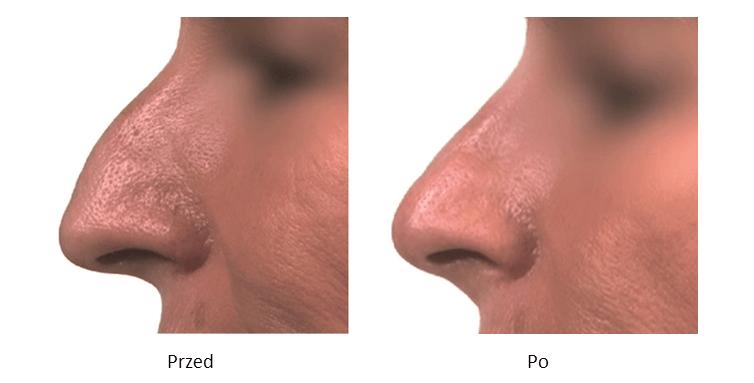 ollie-pl-efekty-zabiegow-medycyny-estetycznej-kwas-hialuronowy-modelowanie-nosa-kwasem-hialuronowym-przed-po