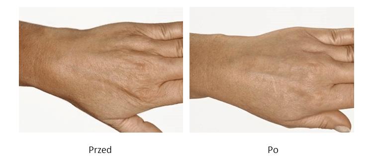 ollie-pl-efekty-zabiegow-medycyny-estetycznej-mezoterapia-dloni-przed-po