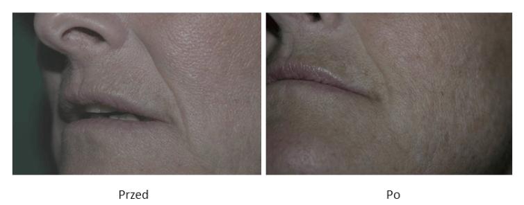 ollie-pl-efekty-zabiegow-medycyny-estetycznej-mezoterapia-kwasem-hialuronowym-przed-po-zdjecia
