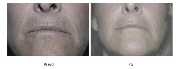 ollie-pl-efekty-zabiegow-medycyny-estetycznej-mezoterapia-kwasem-hialuronowym-przed-po