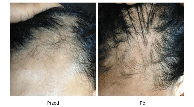 ollie-pl-efekty-zabiegow-medycyny-estetycznej-mezoterapia-owlosionej-skory-glowy