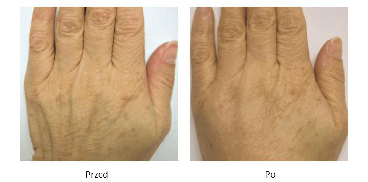 ollie-pl-efekty-zabiegow-medycyny-estetycznej-modelowanie-dłoni-kwasem-hialuronowym-przed-po