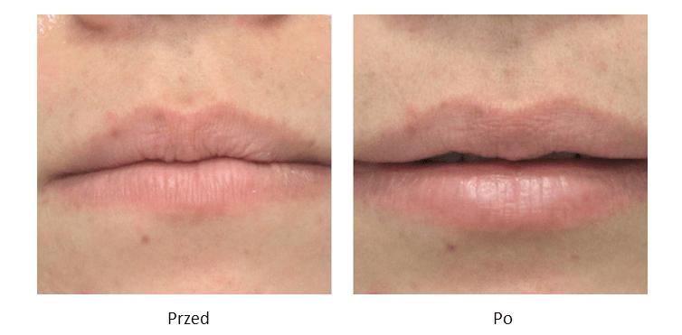 ollie-pl-efekty-zabiegow-medycyny-estetycznej-powiekszanie-ust-kwasem-hialuronowym-przed-po
