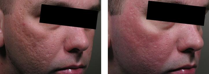 ollie-pl-zmarszczki-leczenie-blizn-potradzikowych-laser-eco2-przed-po-zabiegu