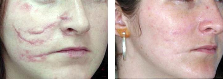 ollie-pl-zmarszczki-leczenie-blizn-powypadkowych-laser-eco2-przed-po-zabiegu