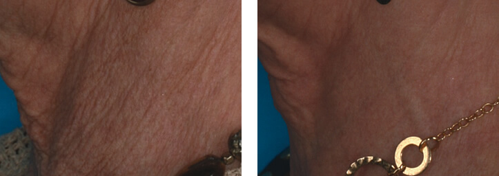 ollie-pl-zmarszczki-wiotkosc-skory-laser-eco2-przed-po-zabiegu-szyja