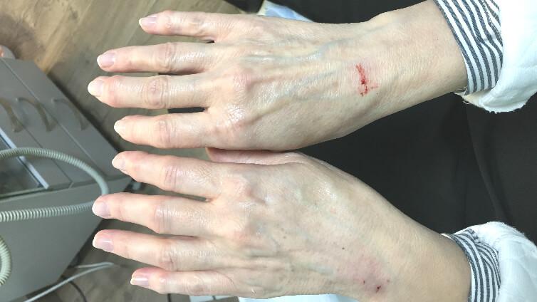 Szkolenie z kwasu hialuronowego-Wolumetria i modelowanie dłoni kaniulami