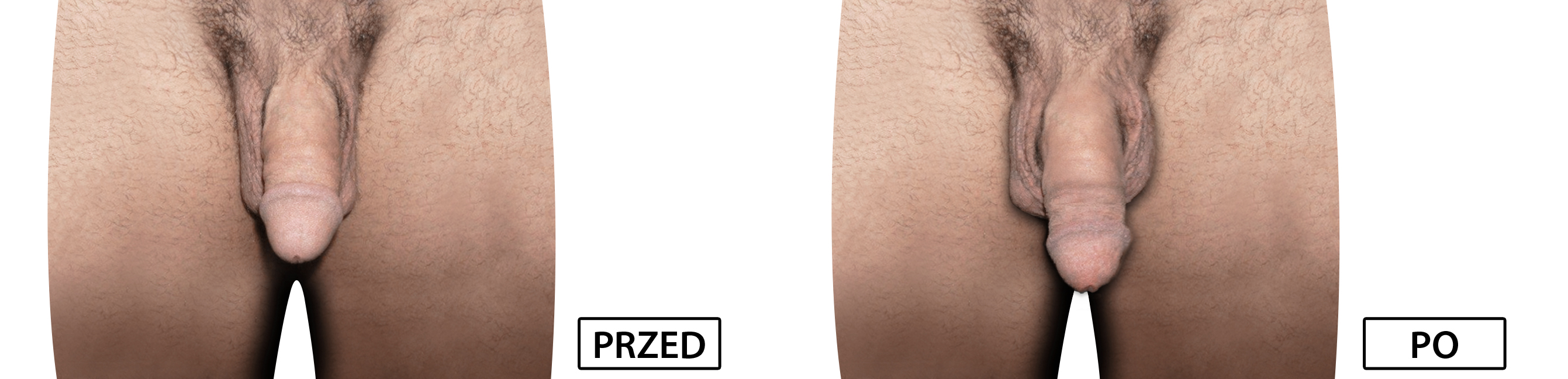 męski penis przed i po)